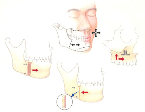 Orthognathic surgery in Goa