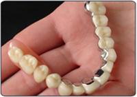 Dental implants telescopic denture